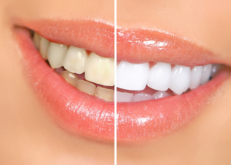Teeth Whitening  Tucson, AZ